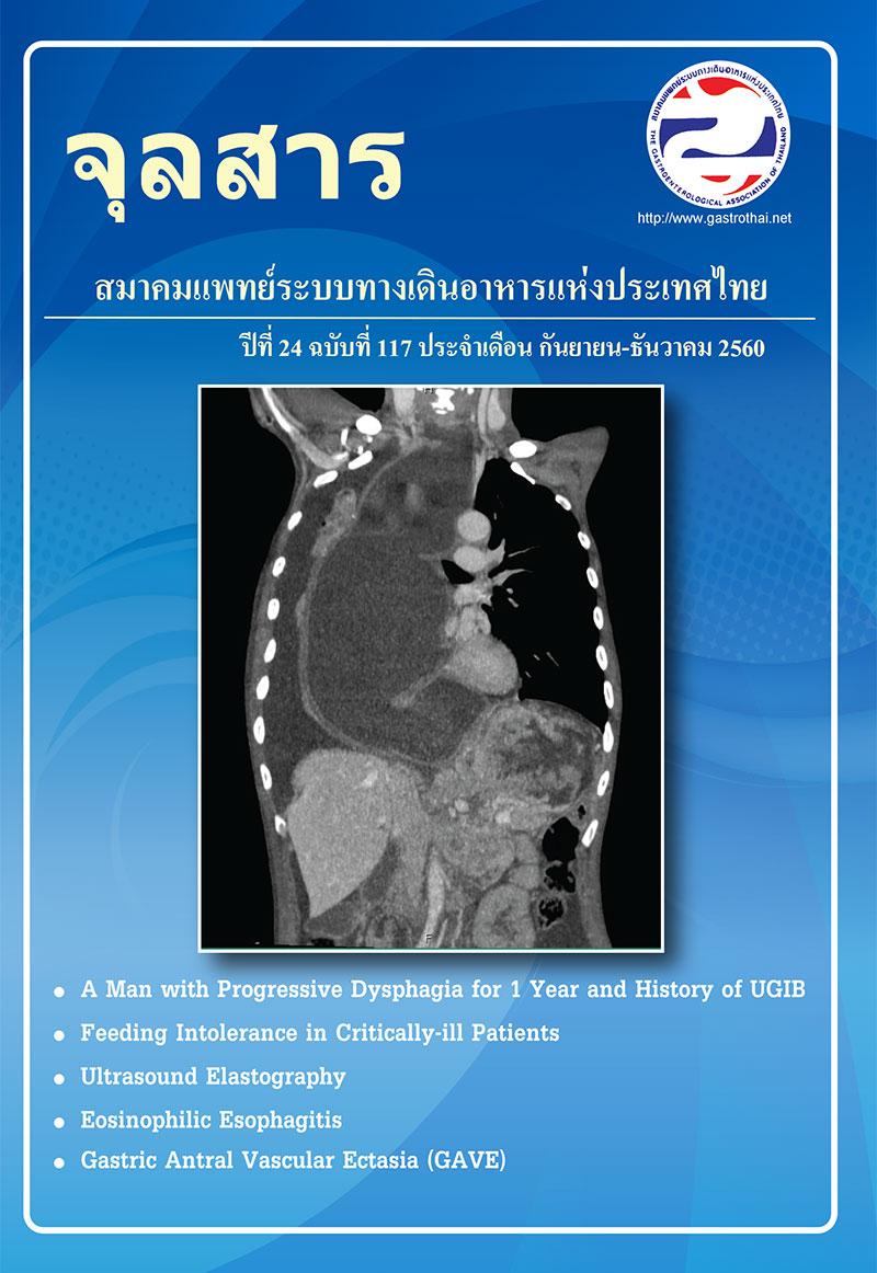จุลสารสมาคมแพทย์ระบบทางเดินอาหารแห่งประเทศไทย ปีที่ 24 ฉบับที่ 117 <ul> <li> A Man with Progressive Dysphagia for 1 Year and History&nbsp;of Upper GI Bleeding </li> <li> Feeding Intolerance in Critically-ill Patients </li> <li> Ultrasound Elastography </li> <li> Eosinophilic Esophagitis </li> <li> Gastric Antral Vascular Ectasia (GAVE) </li> </ul>
