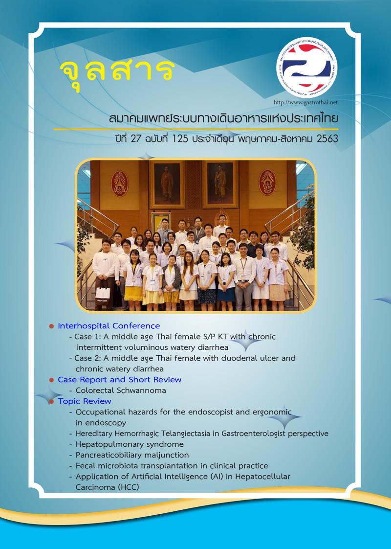 จุลสารสมาคมแพทย์ระบบทางเดินอาหารแห่งประเทศไทย ปีที่ 27 ฉบับที่ 125 <ul> <li>Interhospital Conference <ul> <li>Case 1: A middle age Thai female S/P KT with chronic intermittent voluminous watery diarrhea</li> <li>Case 2: A middle age Thai female with duodenal ulcer and chronic watery diarrhea</li> </ul> </li> <li>Case Report and Short Review <ul> <li>Colorectal Schwannoma</li> </ul> </li> <li>Topic Review <ul> <li>Occupational hazards for the endoscopist and ergonomic in endoscopy</li> <li>Hereditary Hemorrhagic Telangiectasia in Gastroenterologist perspective</li> <li>Hepatopulmonary syndrome</li> <li>Pancreaticobiliary maljunction</li> <li>Fecal microbiota transplantation in clinical practice</li> <li>Application of Artifcial Intelligence (Al) in Hepatocellular Carcinoma (HCC)</li> </ul> </li> </ul>